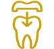 dental-overlays